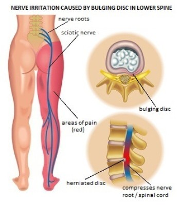 chiropractic can help pain numbness tingling into legs and arms